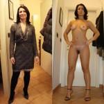 Photos avant après seins nue